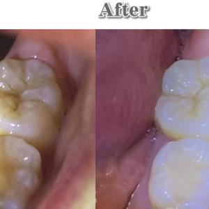 ヒーリングで虫歯が自然治癒した写真を公開します