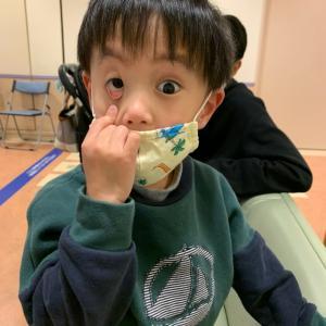 【息子】小児眼科(未熟児網膜症)定期検診(4歳9ヶ月)