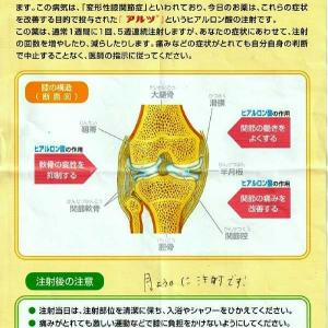 「アルツ」ヒアルロン酸注射。膝に水がたまり4回目の水抜き。