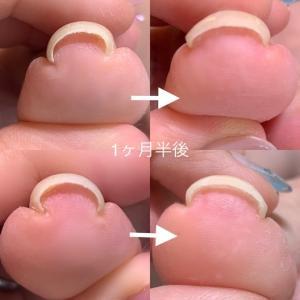 巻き爪矯正のメニューが追加されした。 横浜 ネイルサロン Marjoram Nail 尾上怜子