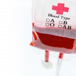 【コロナ】血液型で重症化に差が出てしまう模様…最もリスクが低かったのがO型、A型、B型はO型の1.2倍、AB型はO型の1.6倍