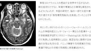 新型コロナウイルスで「急性壊死性脳炎」を発症!!