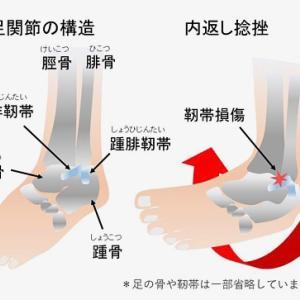 足関節捻挫やその周囲の痛み、鍼治療がお薦め!