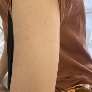 コロナワクチン 1回目接種