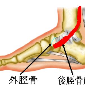 有痛性外脛骨について