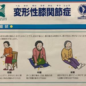変形性膝関節症は治る?