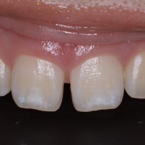 治療例 ダイレクトボンディング 約2時間ですきっ歯を自然な感じに