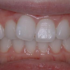 治療例 「マウスピース矯正」で前歯の重なり、飛び出しをきれいに並べる