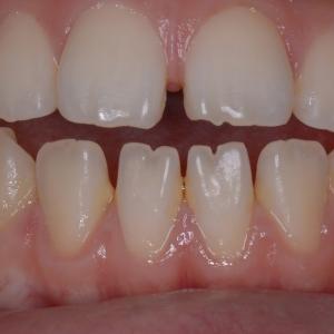 治療例 マウスピース矯正ですきっ歯+出っ歯+開口を改善