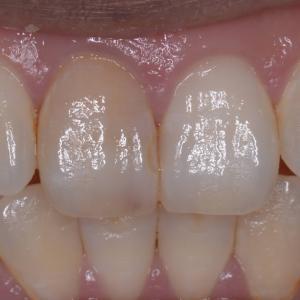 治療例 神経をとって変色した歯を「ウォーキングブリーチ」と「ダイレクトボンディング」で自然な感じに