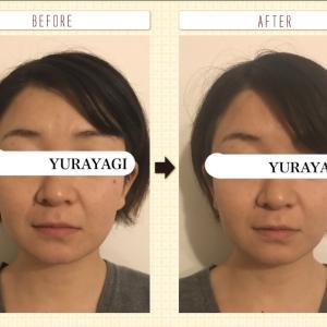 【究極の小顔矯正】お顔のバランスが左右整い感動する方続出中!【川越】【痛くない】
