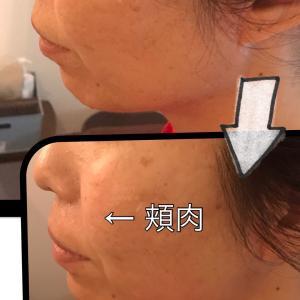 頬の位置が劇的に変わりました★広島県福山市 HIFU(ハイフ)  アンチエイジング コルギ