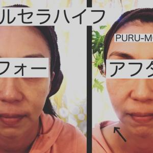 HIFU(ハイフ)はどんな人がするの?★広島県福山市 プルモア