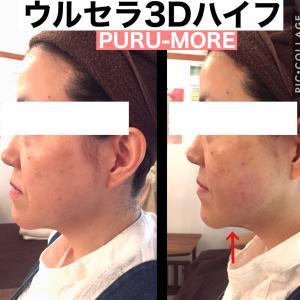 二重あごにHIFU(ハイフ)広島県福山市 小顔 コルギ   ハイフ 痩身 プルモア