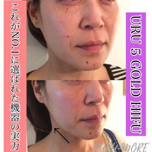 これがNO.1の実力★広島県福山市 ハイフ HIFU プルモア 痩身 プラズマシャワー