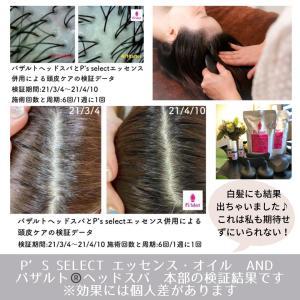 【複製】バザルト®ヘッドスパで白髪にも変化が!?