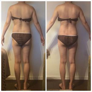 ≪鹿児島県・40代女性≫肩甲骨くっきり出て背中スッキリ♪