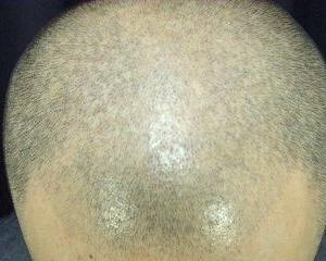 2度目のヘアタトゥー