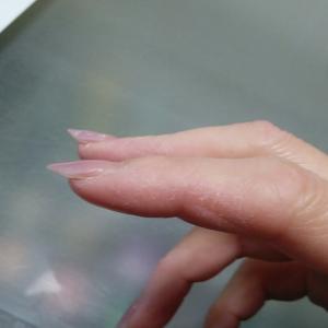 ボロボロの手、リカバリー中。あとひといき。