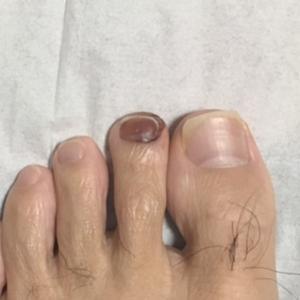 足の爪下血腫の原因は??