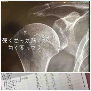 右肩痛みでちょっと整形外科