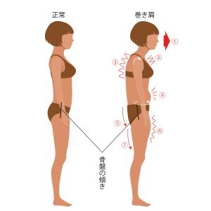 痛みの戻らない正しい姿勢作りをお手伝いします