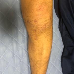 前十字靭帯再建手術(半月板縫合も) 術後40日目