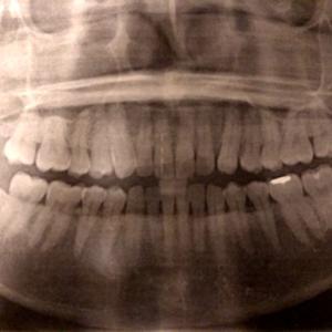 ゾメタに向けて歯科検診