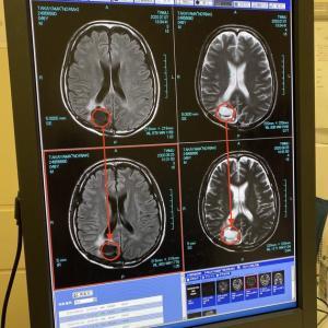 脳腫瘍のMRIに写っていたのは嚢胞内の出血