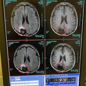 MRIで脳梗塞が見つかる