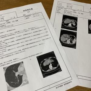 CT検査報告書/細かい検査の先にあるもの