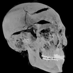 3600年前のファラオの死因、先端技術でついに解明