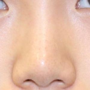 鼻先を細くちょっとしてに向けたい、術後1週間