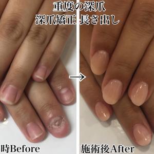 東京深爪矯正・深爪改善ネイルサロンキャメロット池袋店・恵比寿店お客様紹介。