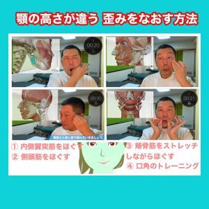 顔が左右非対称ゆがみをなおす方法