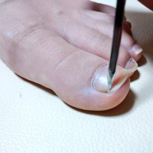 巻き爪矯正の治療で大切な爪の切り方