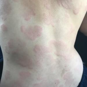 ナゾの蕁麻疹