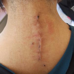 2019年9月~10月 骨転移外来 首の手術(閲覧注意)