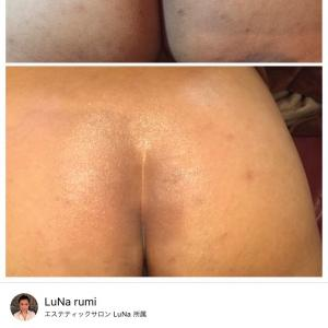 お尻ニキビの色素沈着〜皮膚再生専門サロンLuNa
