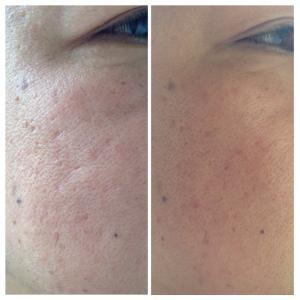 お客様のお肌がどんどんキレイに〜皮膚再生専門サロンLuNa