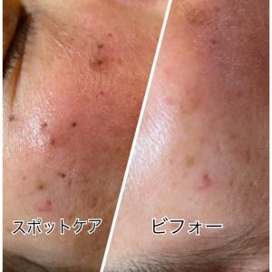 スポットケアが大人気〜皮膚再生専門サロンLuNa