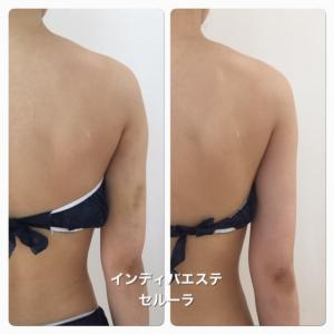 二の腕の脂肪吸引手術後にはインディバで早く綺麗になりましょう!(#^.^#)