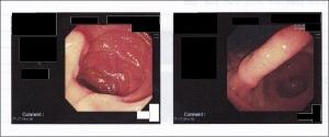 鼻から胃カメラ体験記