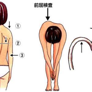 皆さんに知って欲しい脊柱側弯症という病気