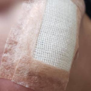 子供の頃出来た傷跡治療から3週間経ちました