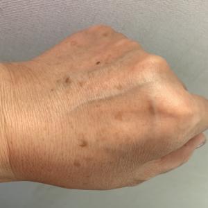 手が老ける原因の8割は、〇〇〇!