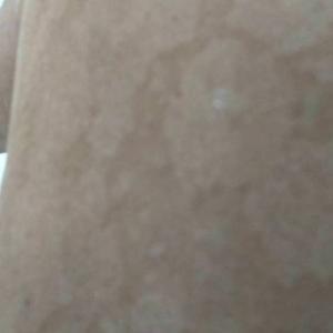 オイラの肌トラブルが何時の間にか解消されてる件