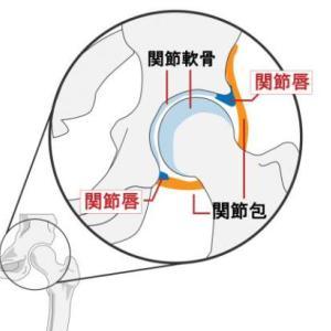 股関節が歩くと痛い(臼蓋形成不全と診断)☆広島出張整体での成果と気づき