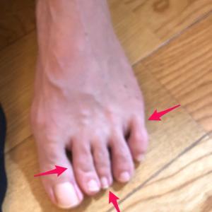 靴屋さんやお医者さんが気がつかなかった足のSOS