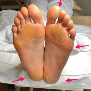 フットケア足型診断♪足の長さが違うケース